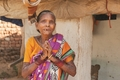 GFA-supported workers provide compassionate care to those who have faced lasting effects from leprosy, like this woman and like Kajri.