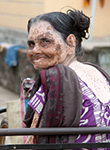 Pray for Leprosy and Slum Ministries